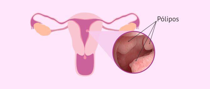 Imagen: Lugar de aparición de pólipos