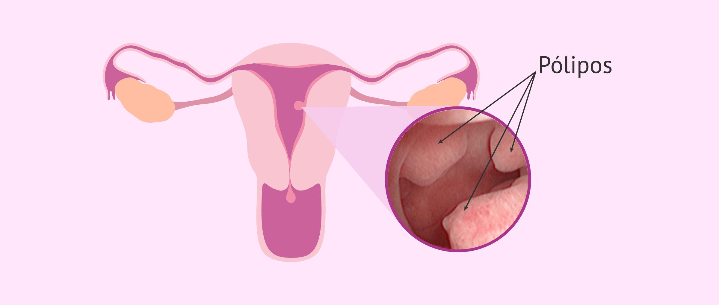 Lugar de aparición de pólipos