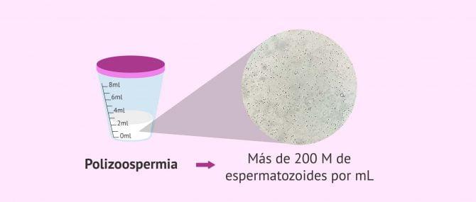 Imagen: polizoospermia