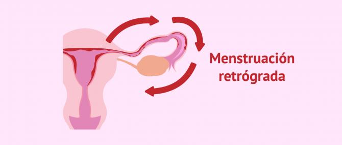 Imagen: Menstruación retrógrada
