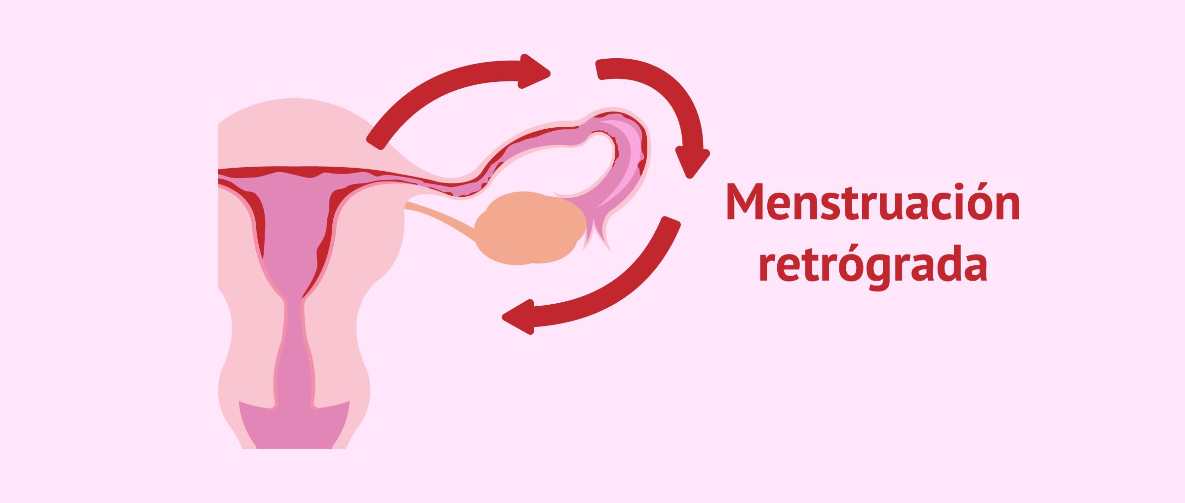 Menstruación retrógrada