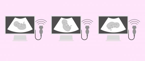Posiciones incorrectas del feto para el parto