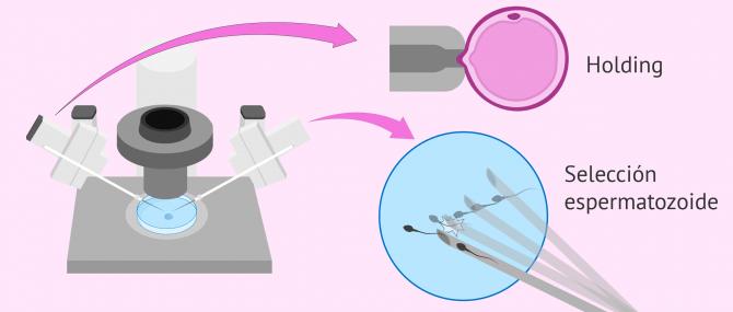 Imagen: Preparación del óvulo y el espermatozoide para la ICSI