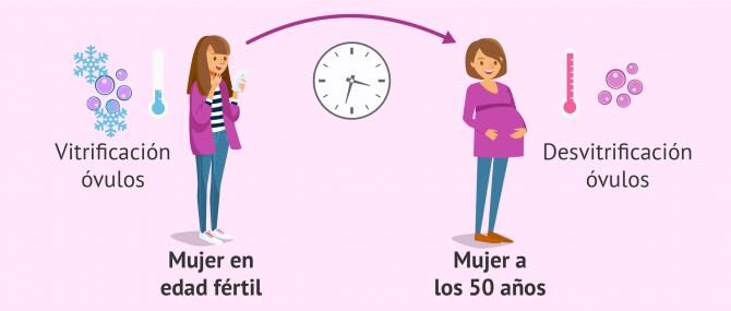 Imagen: Preservación de la fertilidad para retrasar la maternidad