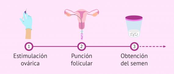 Primeros pasos en un ciclo de FIV