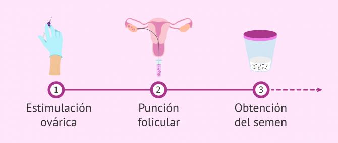 Imagen: Primeros pasos en un ciclo de FIV
