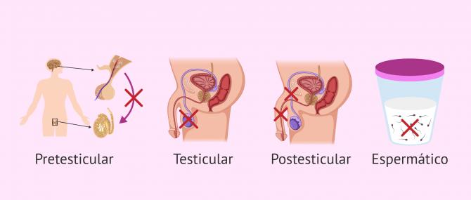Imagen: Factores alterados en infertilidad masculina