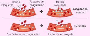 Problemas de coagulación sanguínea