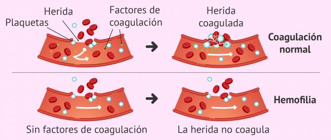 Imagen: Problemas de coagulación sanguínea por hemofilia