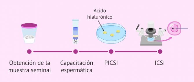 Microinyección fisiológica o PICSI: indicaciones y ventajas