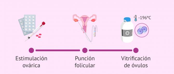 Imagen: ¿Cómo es el proceso de vitrificación de óvulos?