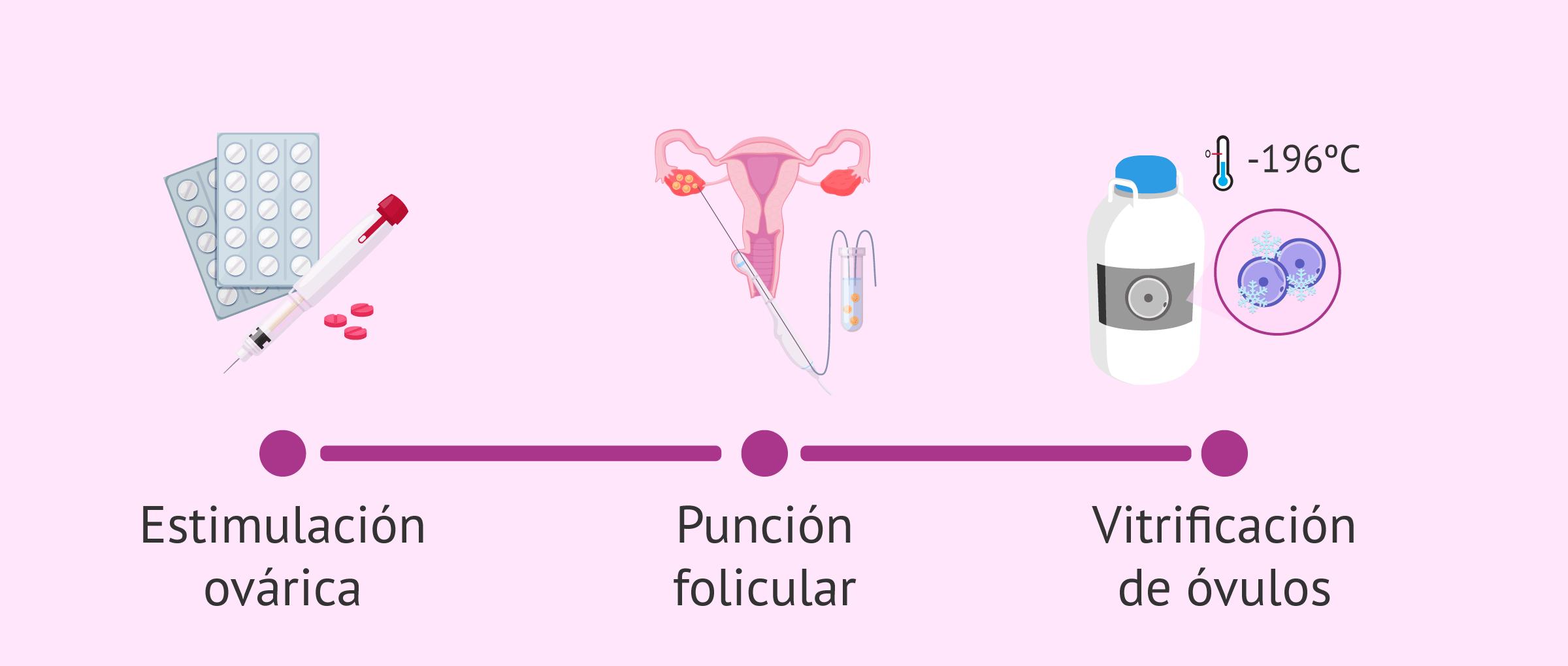 ¿Cómo es el proceso de vitrificación de óvulos?