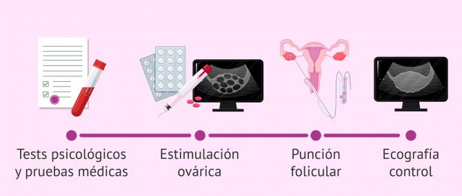 Imagen: proceso-medico-donacion-de-ovulos