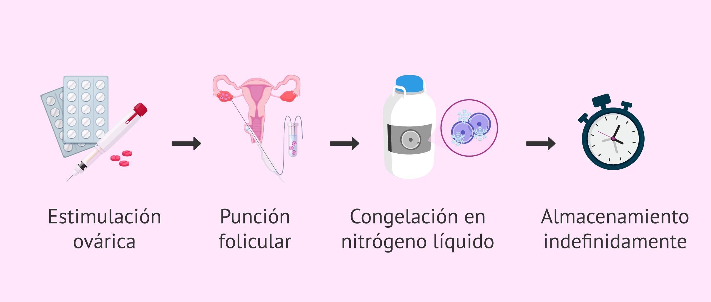 Proceso de la preservación de la fertilidad femenina