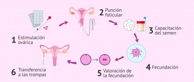 Imagen: Transferencia embrionaria en las trompas de Falopio.