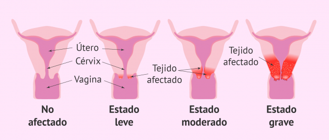 Imagen: Progresión del cáncer cervical