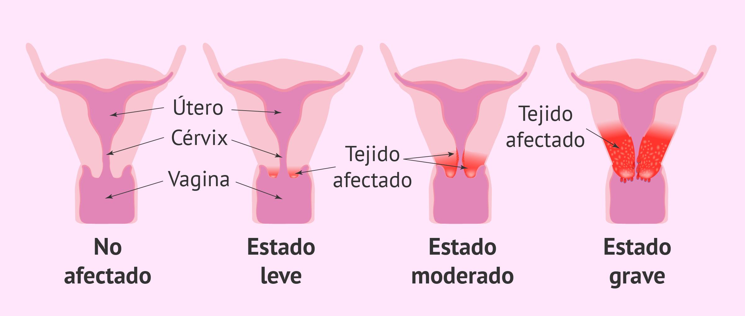 Progresión del cáncer cervical