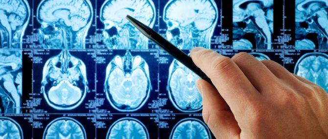 Imagen: Desarrollar un tumor