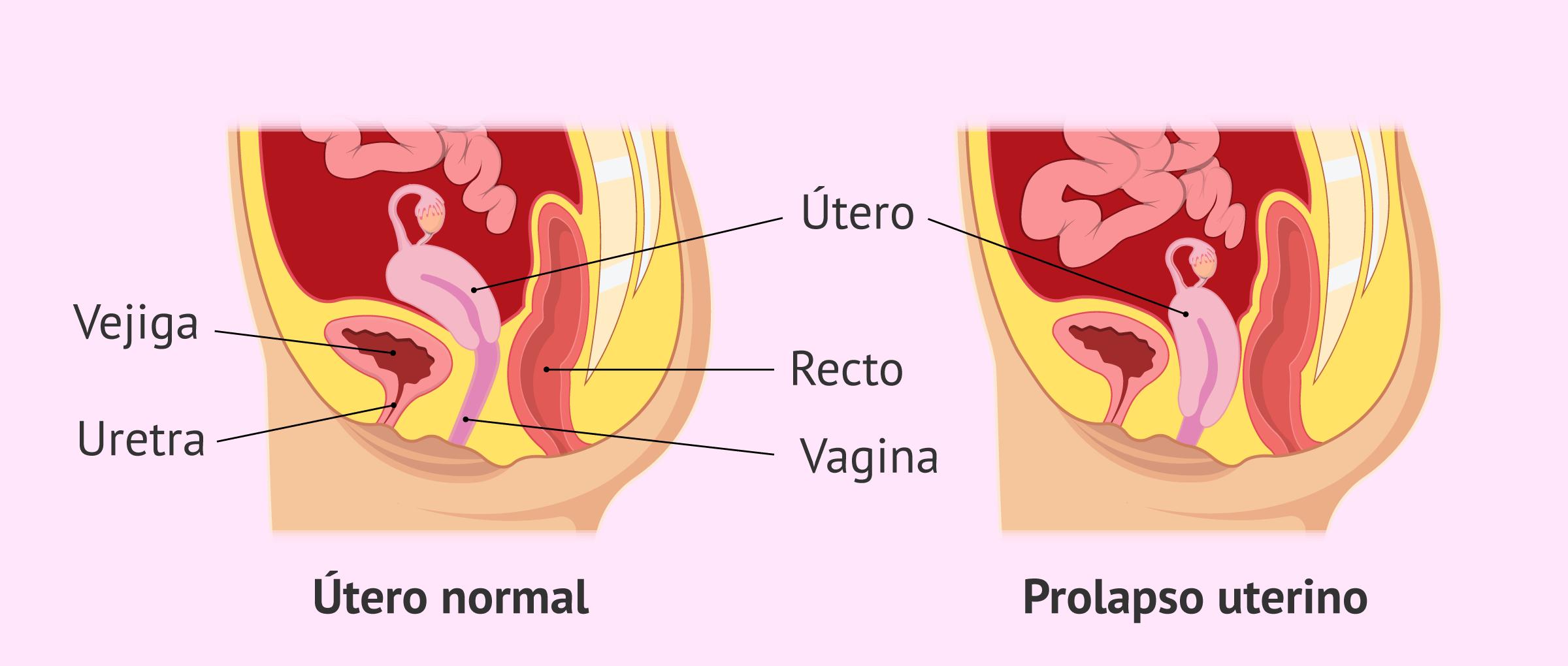Comparación de un útero normal y un prolapso uterino