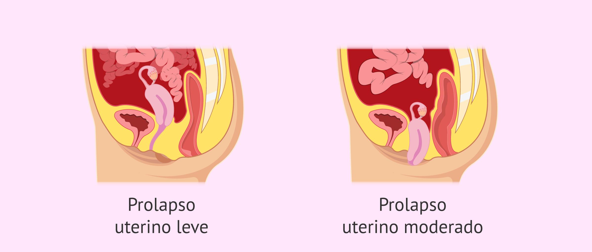 Tipos de prolapso uterino