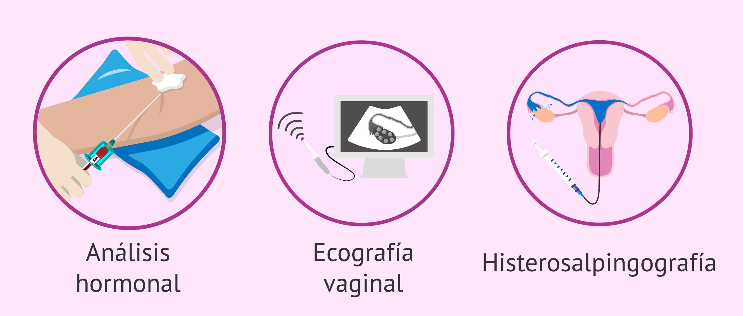 Pruebas para estudiar la fertilidad femenina