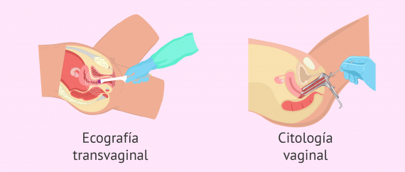 Imagen: Pruebas ginecológicas para evaluar la fertilidad femenina