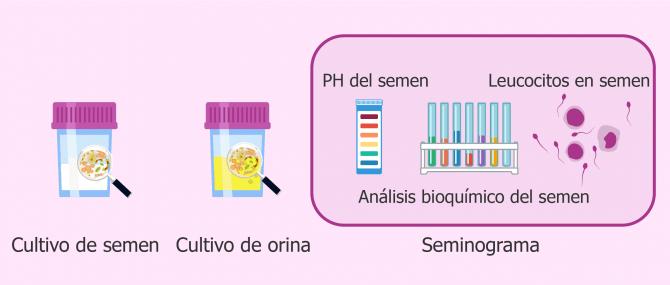 Imagen: Análisis para detectar infecciones seminales