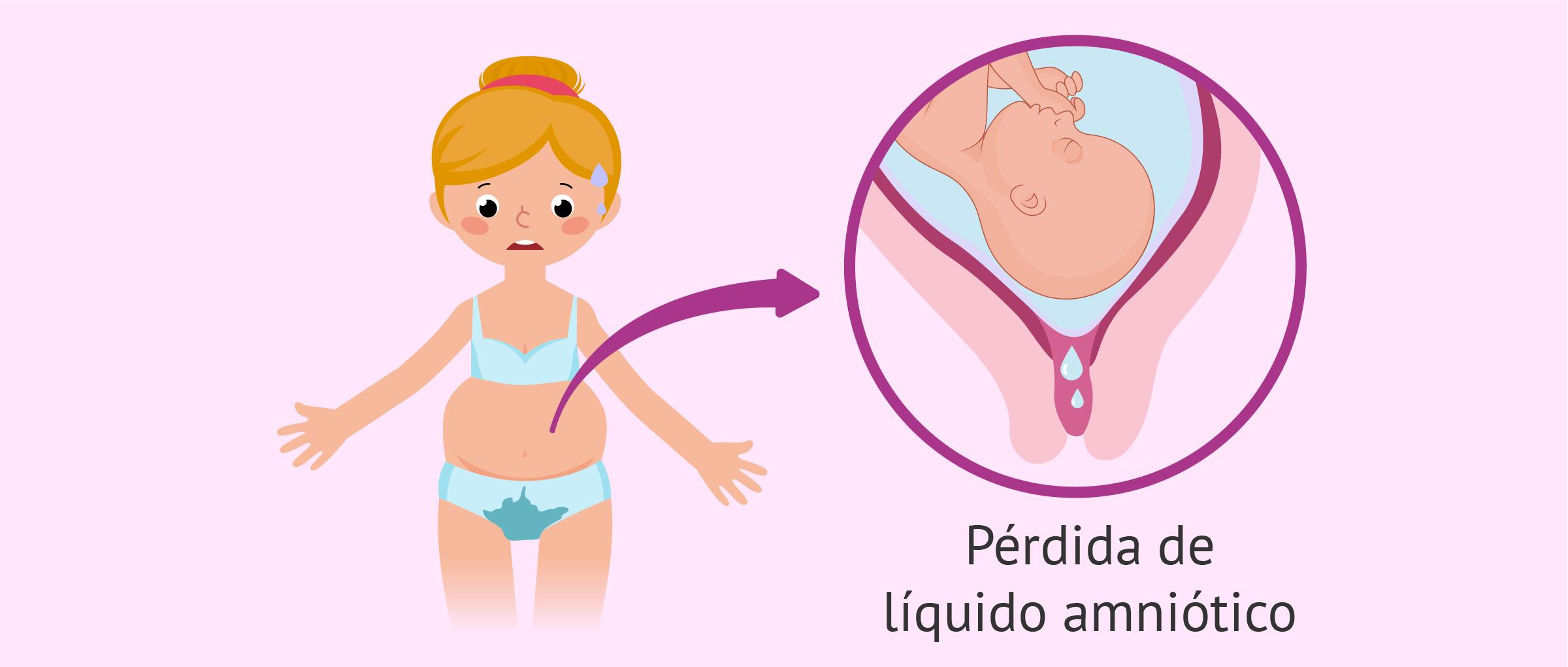 Pérdida de líquido amniótico durante el embarazo
