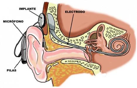 Éxito de implante coclear en niños