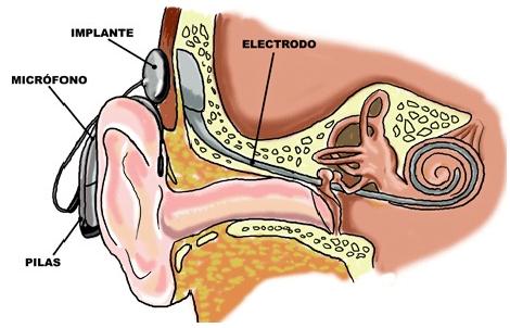 Estructura externa-estructura interna-oído-implante coclear-oreja