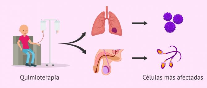 Imagen: Quimioterapia e infertilidad masculina