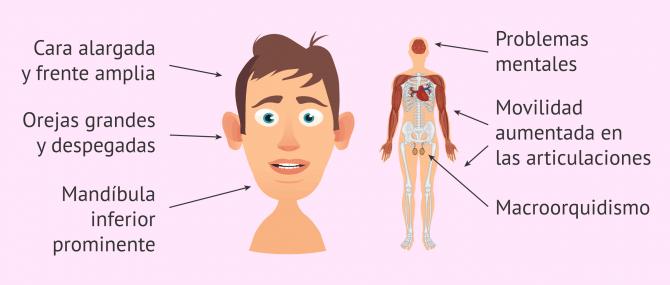 Imagen: Rasgos físicos en hombre con Síndrome de X Frágil
