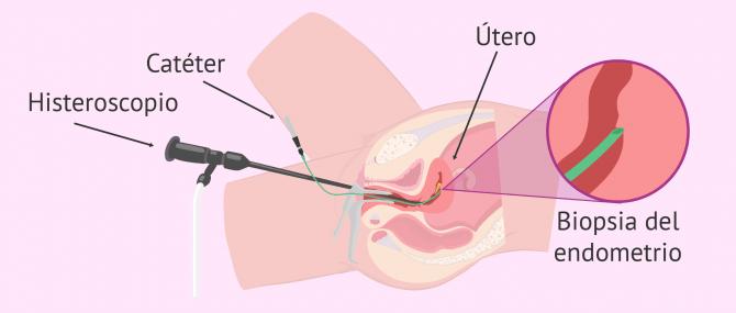 Imagen: Raspado endometrial