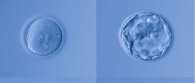 Imagen: Registro embrionario