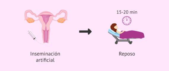 Imagen: Hacer reposo después de la inseminación artificial