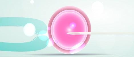 Inyección de un espermatozoide en un óvulo. (ICSI)