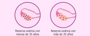 Ecografía de reserva ovárica