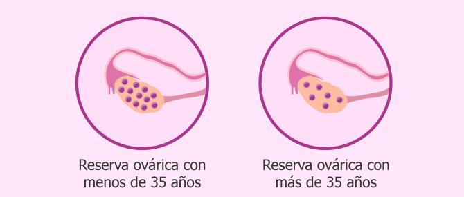 ¿Qué es la reserva ovárica y cómo afecta a la fertilidad?