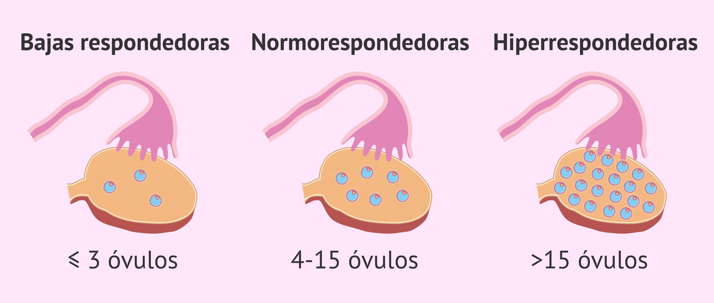¿Cuántos óvulos se necesita obtener para la FIV?