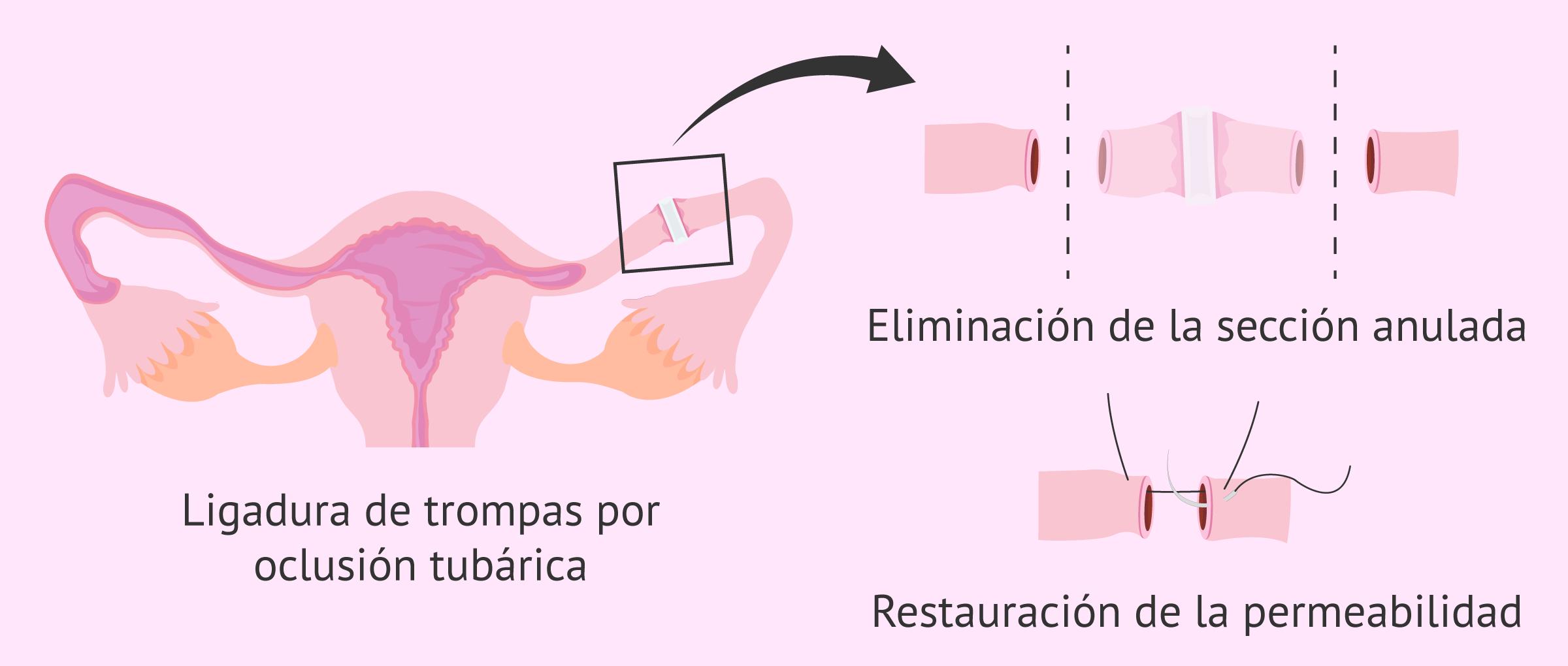 Reversión de la ligadura de trompas por oclusión