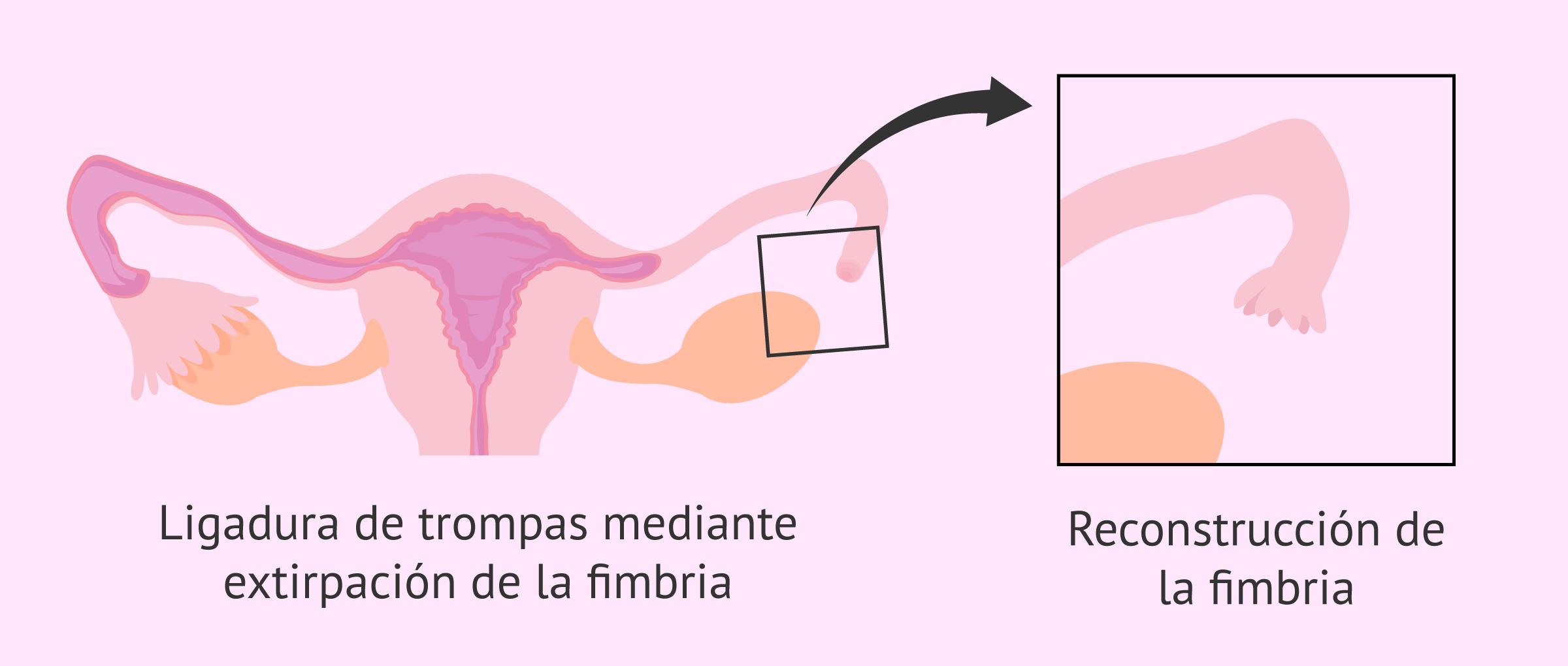 Reversión de la ligadura de trompas por reconstrucción de la fimbria