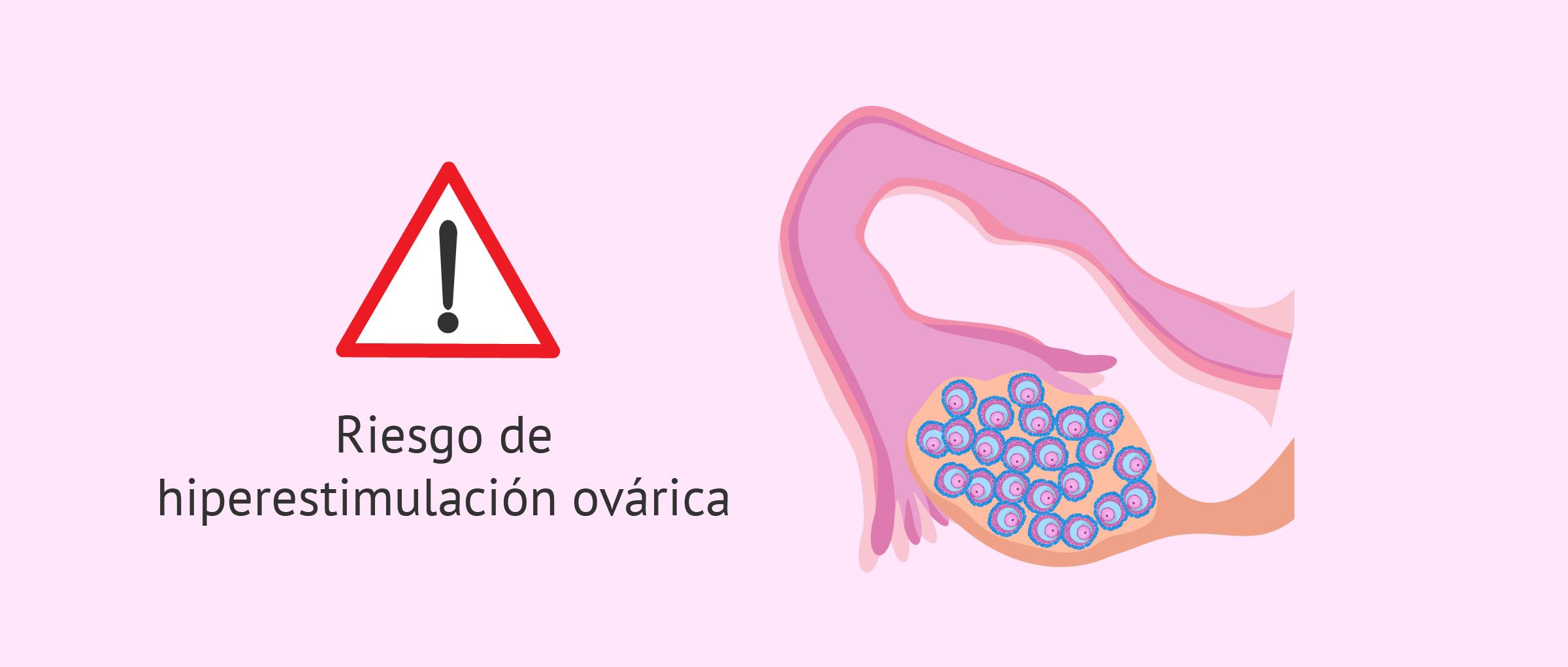 Riesgo de hiperestimulación ovárica en inseminación artificial