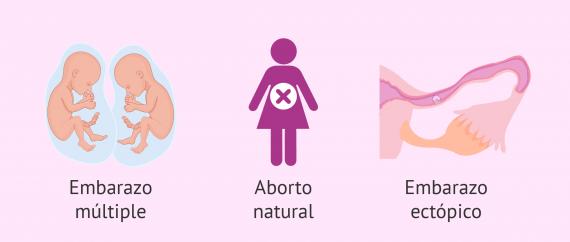 Imagen: Embarazo extrauterino