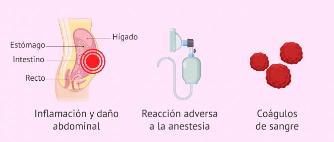 Imagen: Riesgos derivados de la laparoscopia