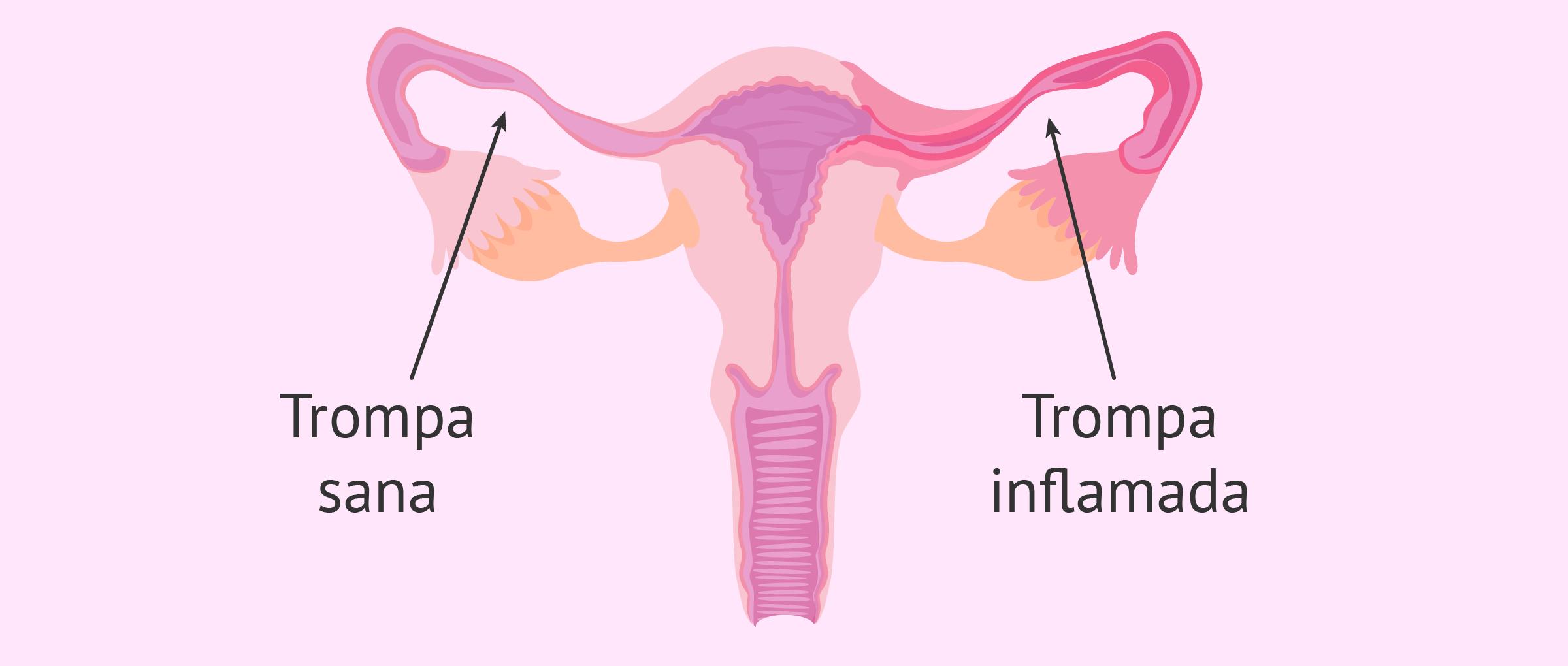 Inflamación de las trompas (Salpingitis)
