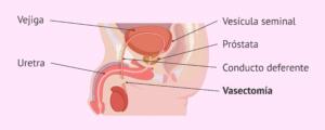 La vasectomía consiste en bloqueas los conductos deferentes