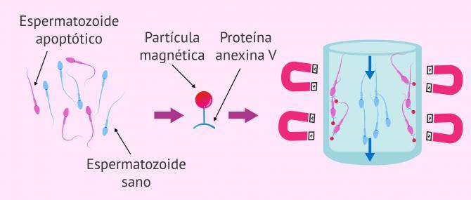 Imagen: Selección de espermatozoides mediante MACS