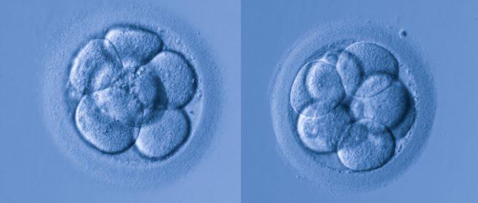Imagen: El embrión óptimo para la transferencia al útero en fecundación in vitro