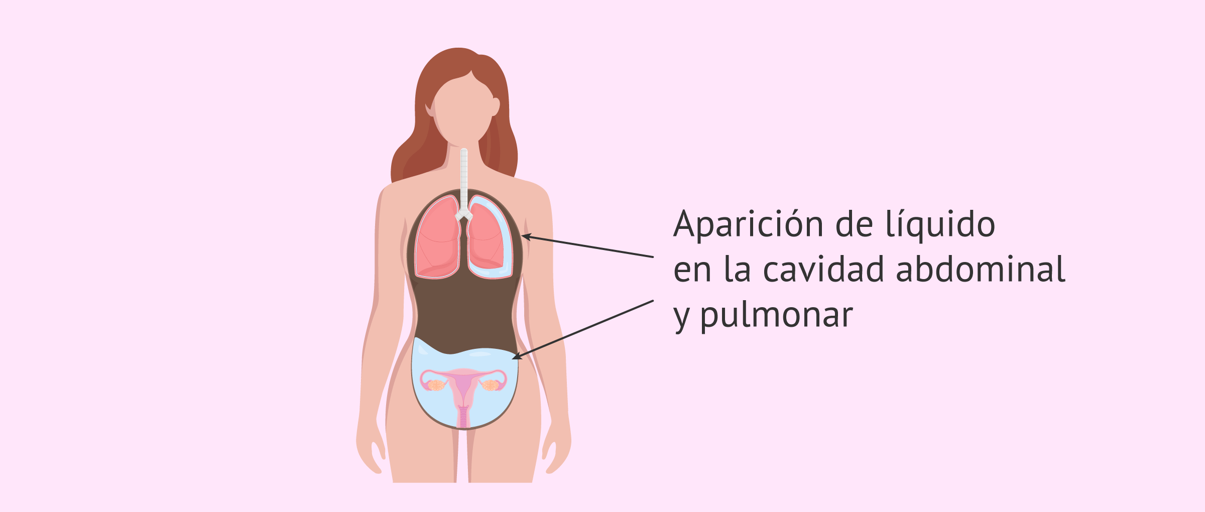 Acumulación de líquido en la cavidad abdominal por SHO