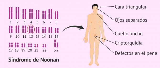 Imagen: Características del Síndrome de Noonan